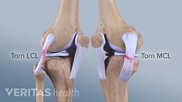Profile views of the knee joint showing a torn LCL and MCL