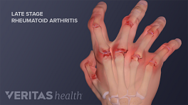 Medical illustration showing late state rheumatoid arthritis joint destruction and deformity in the hands