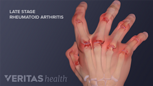 Occupational therapy, splinting, finger and wrist joint replacement surgery for hand rheumatoid arthritis treatment
