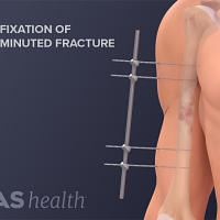 Illustration of an external fixation of an open comminuted humerus fracture