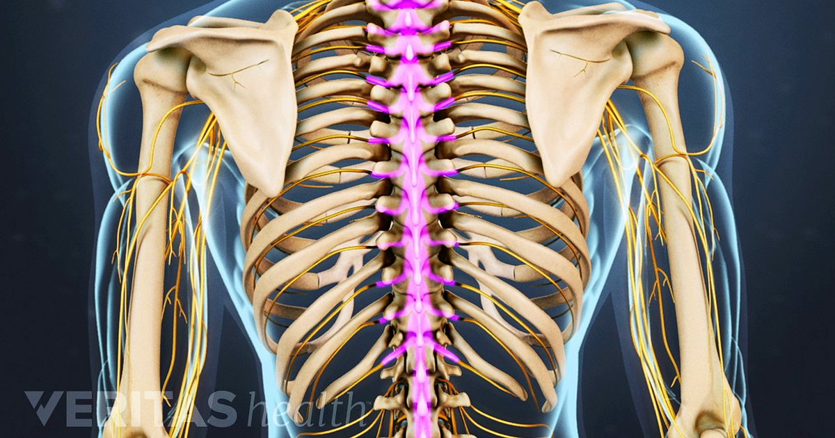 Thoracic Herniated Disc Surgery