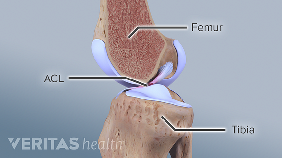 Profile view of the knee joint labeling ACL, femur, and tibia.