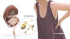 5 Unusual Gout Symptoms