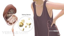 Medical illustration of kidney stones