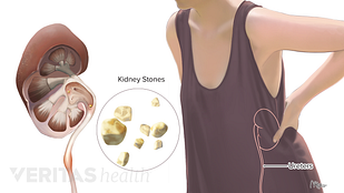 Medical illustration of kidney stones
