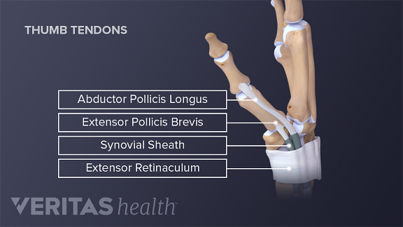Inflammation of the tendons in the thumb can cause De Quervain's tenosynovitis