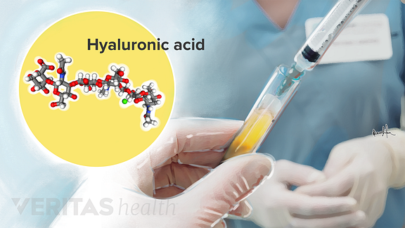 Illustration of hyaluronic acid injection and molecular composition