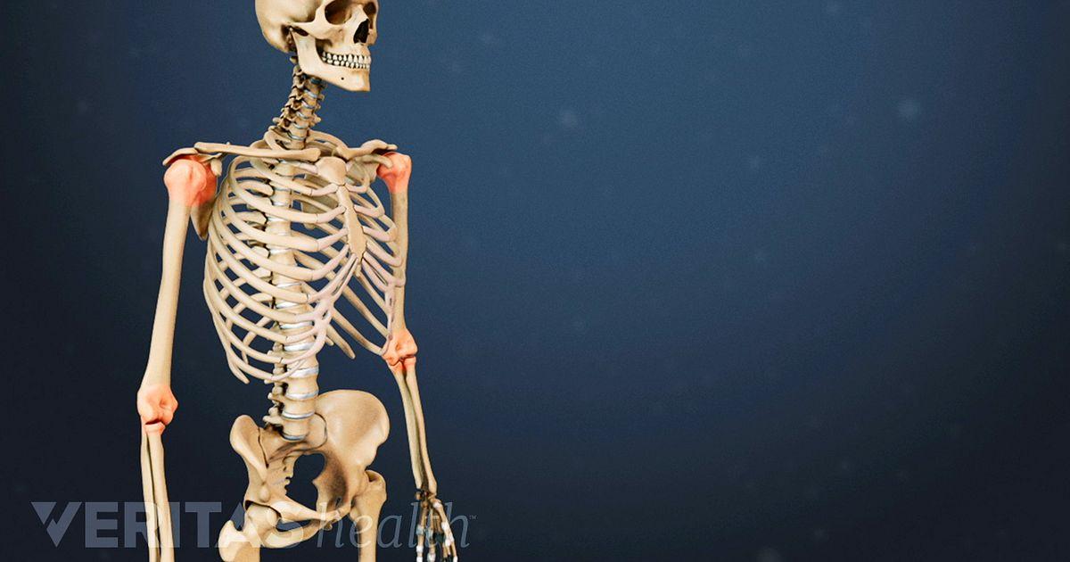 Rheumatoid Arthritis in the Spine