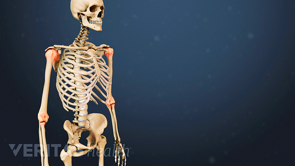 Illustrated skeleton with red highlights on the shoulder and elbow joints indicating pain