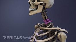 Medical illustration of the cervical spine, the C6-C7 vertebrae are highlighted