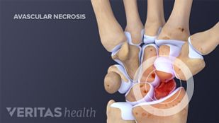 Avascular necrosis of proximal scaphoid fragment