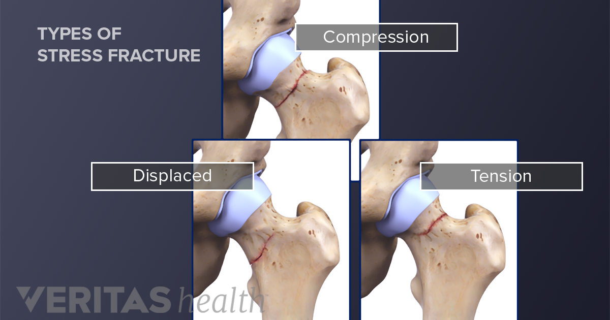 All About Stress Fractures