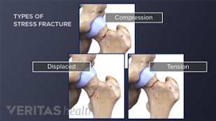 Three types of stress fractures in a hip (tension, displaced, and compression)