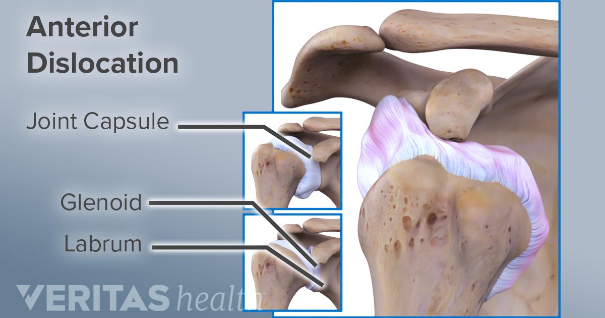 Dislocated Shoulder Symptoms