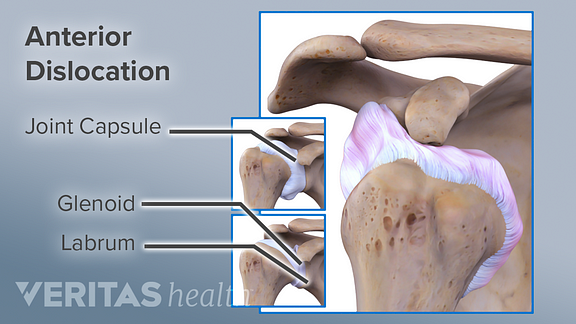 Anterior view of a dislocated shoulder labeling the joint capsule, glenoid, and labrum.