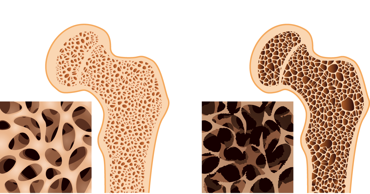 teaching plan on osteoporosis Care guide for calcium and osteoporosis (discharge care your dietitian or healthcare provider can help you create a balanced meal plan for your calcium needs.