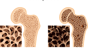 Comparison view of normal bone vs bone with osteoporosis