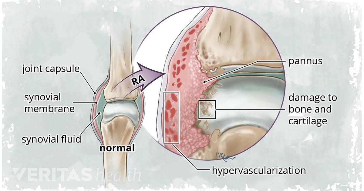A Visual Guide To Rheumatoid Arthritis
