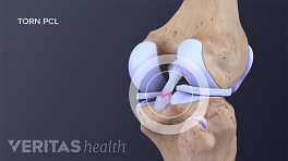 PCL Tear in posterior view of the knee