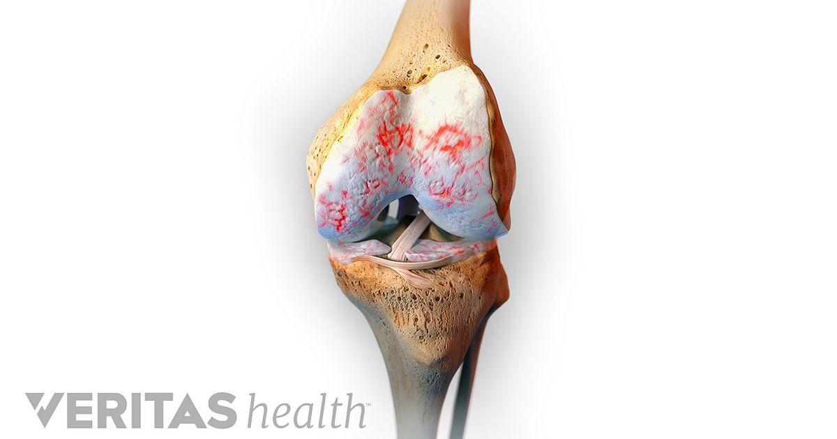 Knee Anatomy Video Arthritis Health