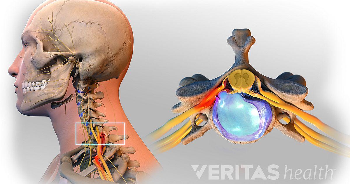 Herniated neck dick
