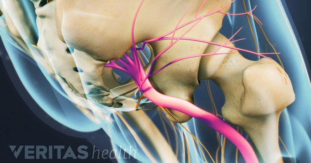 inflamacion nervio ciatico sintomas