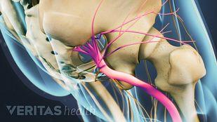 Consecuencias del bloqueo del nervio ciatico