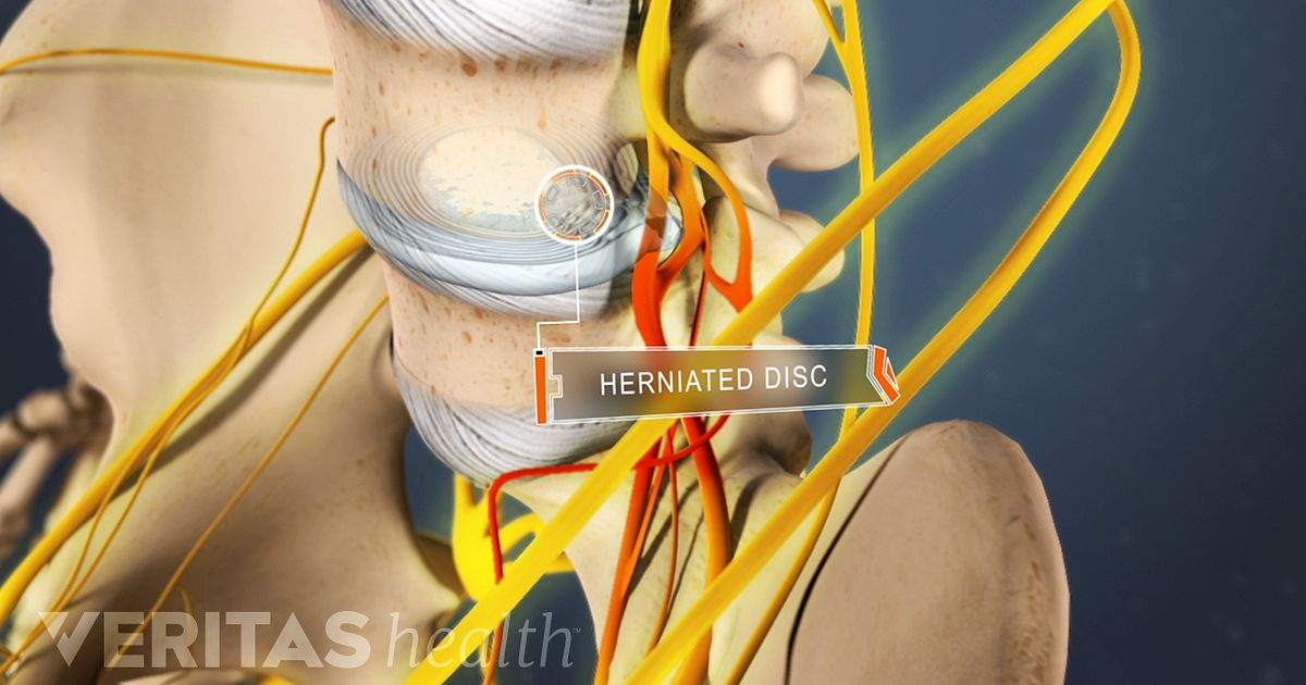 treatment options for a lumbar herniated disc, Human Body