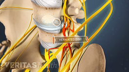 Medical illustration of a herniated disc
