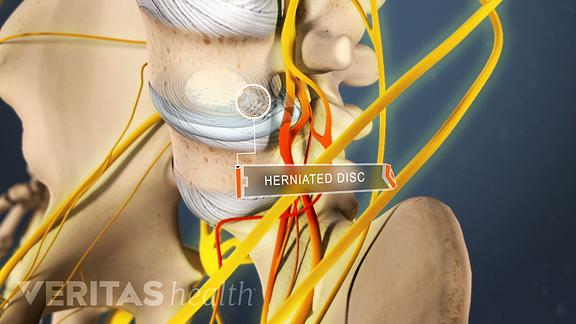 animated video still of a lumbar herniated disc