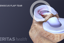 Factors Affecting Knee Meniscus Surgery