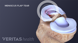 A flap tear is one type of meniscus tear
