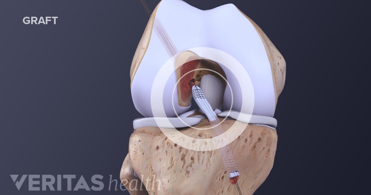 ACL Tear Surgical Repair