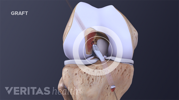 Illustration of patellar tendon graft placed during ACL repair surgery
