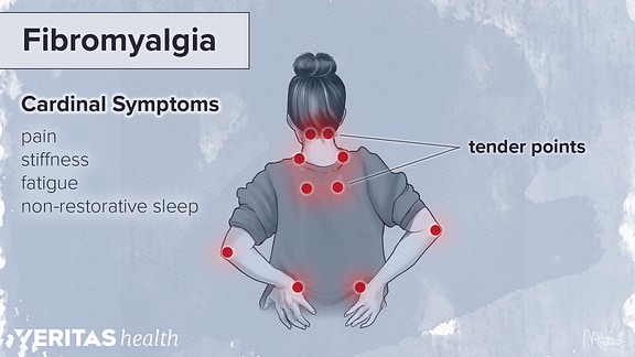 Medical illustration of fibromyalgia tender points and cardinal symptoms