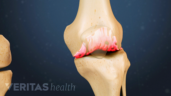 Medical illustration of the knee joint showing osteophytes highlighted in red to indicate pain