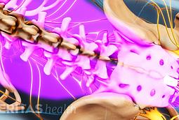 Diagnosing Low Back Pain