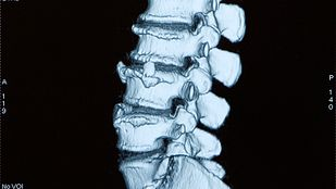 Profile view of an xray of the lumbar spine.