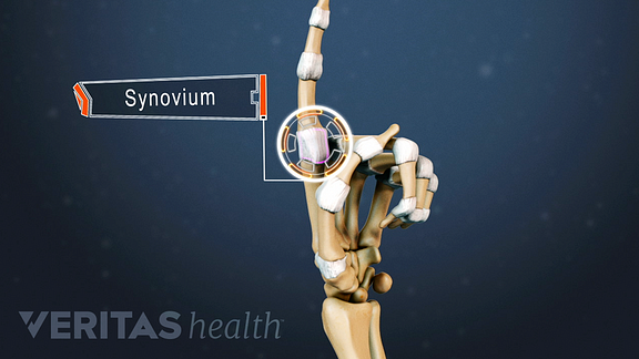Hand anatomy highlighting the synovium