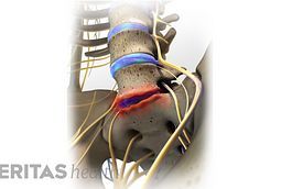 Degenerative Disc Disease Treatment Guidelines