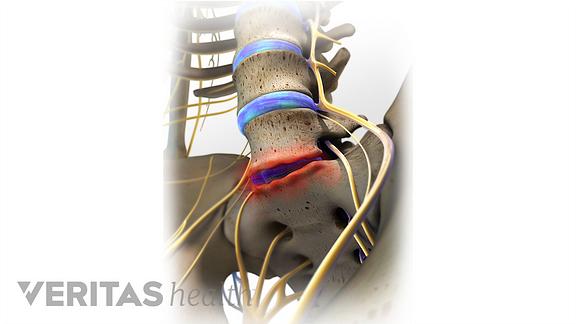 Anterior view of degenerative disc disease in the lumbar spine.