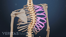 Posterior view of the spine with idiopathic scoliosis curve