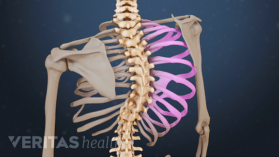 Illustration of spine with idiopathic scoliosis curve