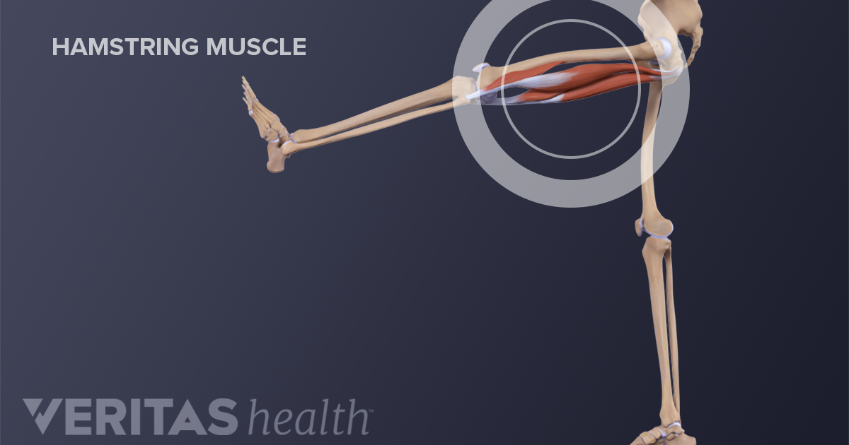 Treatments for Chronic High Hamstring Tendinopathy