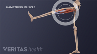 Medical illustration of a hamstring muscle stretch