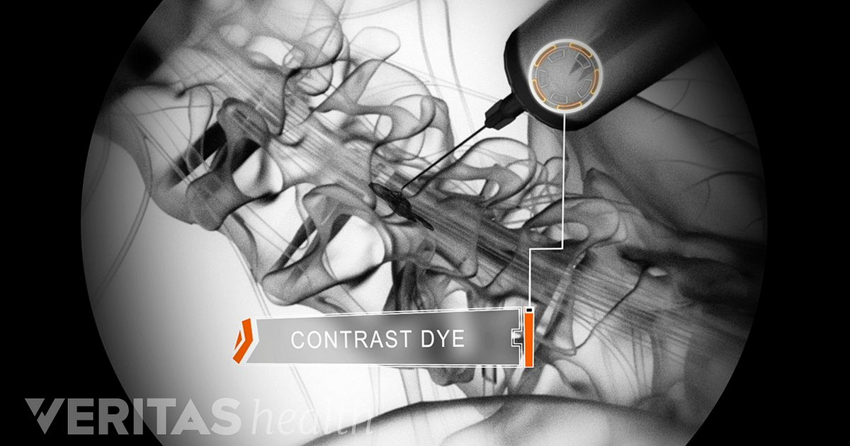Inyeccion para hernias discales