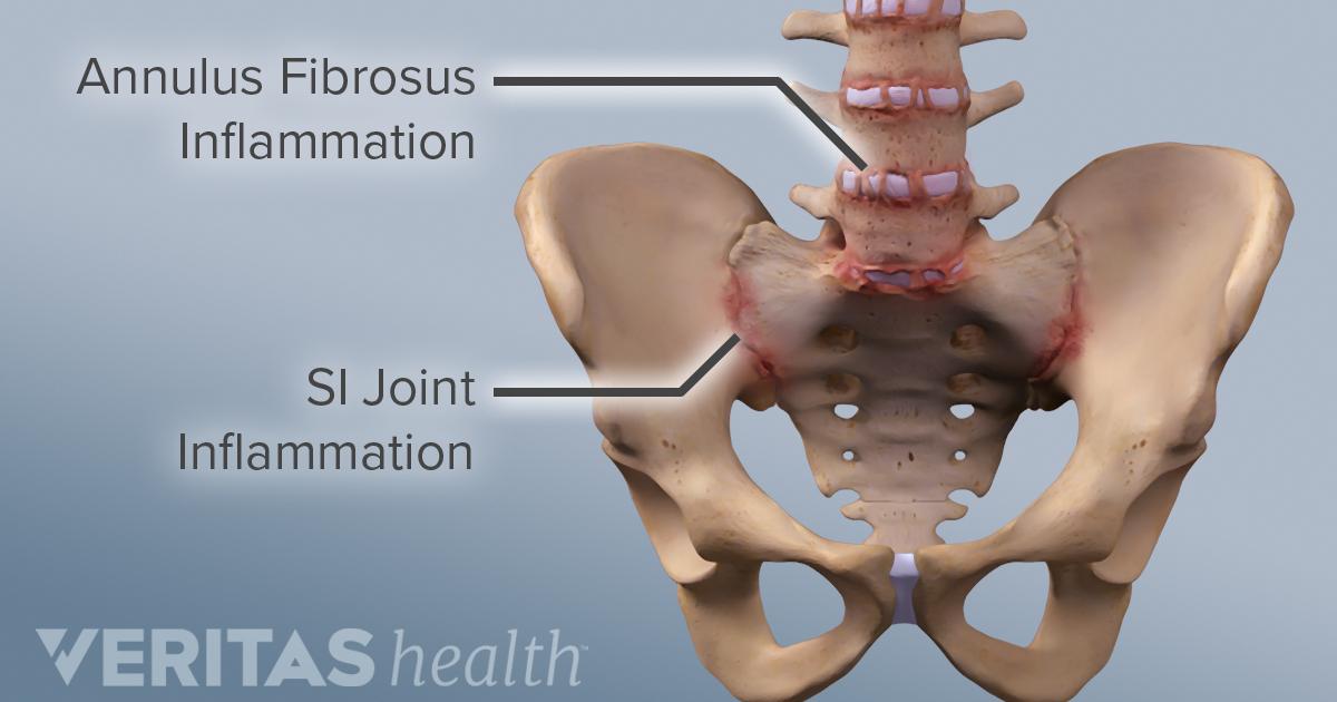 What is Ankylosing Spondylitis?   Arthritis-Health