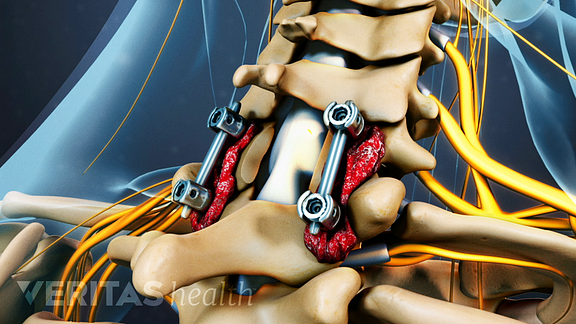 post cervical laminectomy fusion screws