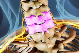 c5-c6 spinal segment