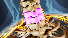 Medical illustration of the cervical spine. C5 and C6 are highlighted.